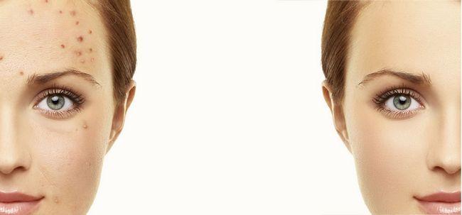 10 Melhores Cuidados com a pele Dicas para Rosácea Photo