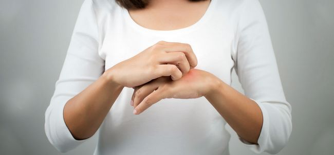 10 Home remédios eficazes para tratar a Micose Photo