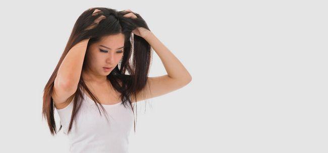 10 deve seguir dicas para se livrar do couro cabeludo seco Photo