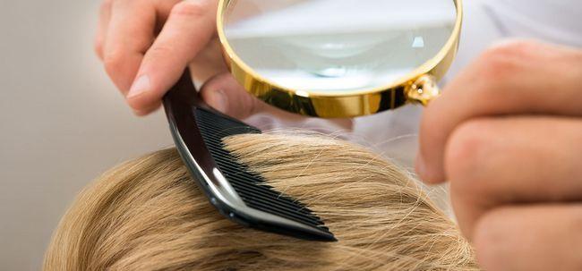 10 Efeitos secundários de cabelo Transplante Você deve estar ciente de Photo