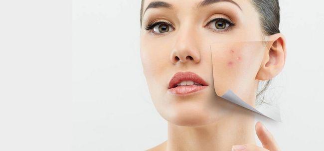 10 soluções simples para tratar a acne pele seca Photo