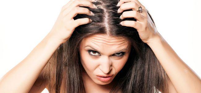10 truques simples e 4 Home remédios para combater uma coceira no couro cabeludo Photo