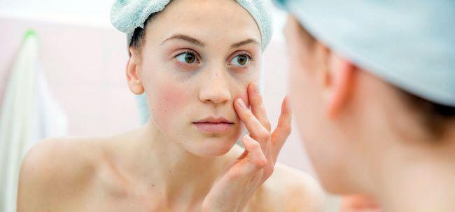 11 Home remédios para olheiras escuras Eye Photo