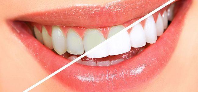 13 maneiras simples para obter dentes brancos Overnight Photo