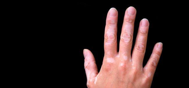 15 maneiras naturais para se livrar de manchas brancas na pele Photo