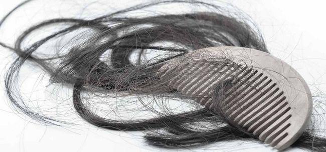 3 maneiras simples para combater a perda de cabelo excessiva? Photo