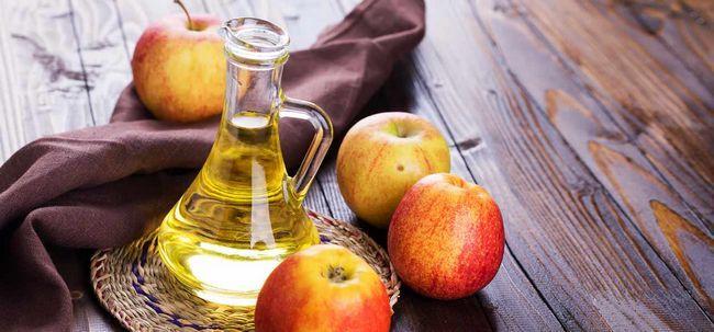 3 maneiras simples de usar vinagre de maçã para tratar pedras nos rins Photo