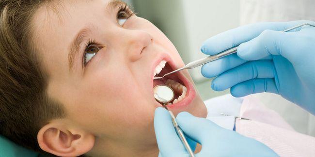 5 Problemas Dental comum em crianças Photo