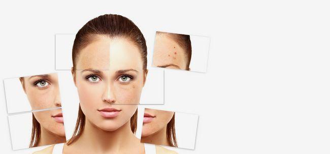 5 problemas de pele mais comuns que você enfrentar durante Summers e suas soluções Photo