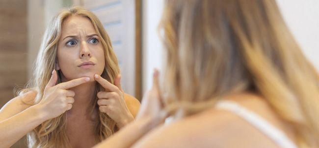 5 maneiras simples de se livrar da acne Chin Photo