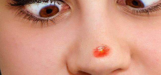 5 maneiras simples de remover espinhas no nariz Photo