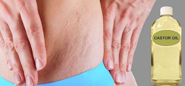 5 maneiras simples de usar óleo de rícino para tratar estrias Photo