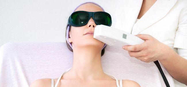 5 tipos de tratamentos da pele do laser e seus benefícios Photo
