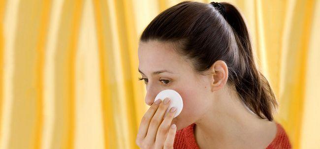 6 passos simples de usar Peróxido de Hidrogênio Para tratar a acne Photo