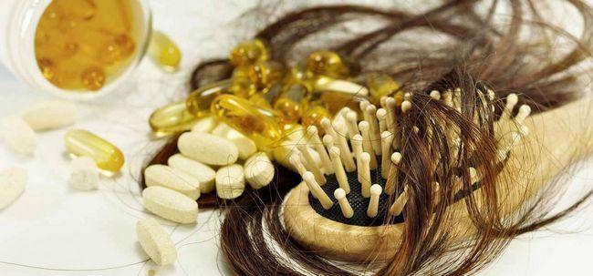 9 repentinas Razões perda de cabelo e como controlá-la? Photo
