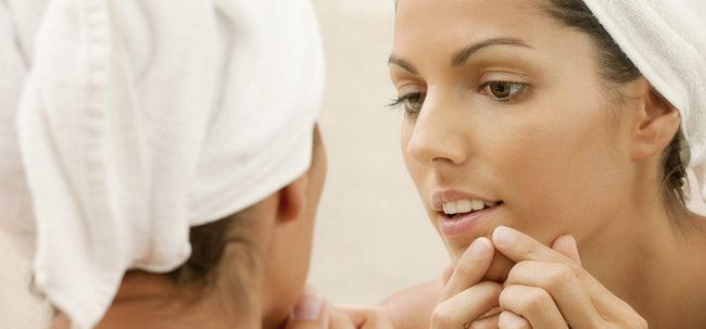 9 maneiras para cuidar de espinhas na boca e lábios - Act Now Photo