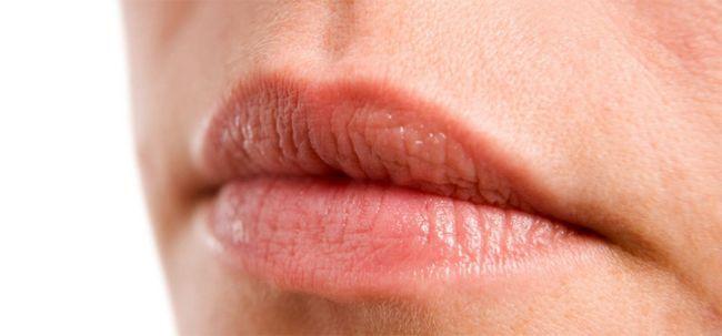 Sangramento Lips - como reduzir a linhas finas? Photo