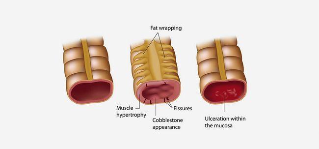 Plano de Dieta doença de Crohn - O que é e como funciona? Photo