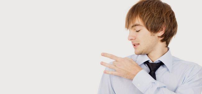 O estresse causa a caspa? Photo