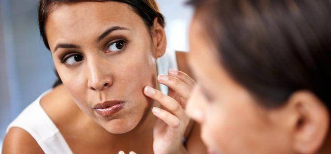 O tratamento holístico Pimple Em Bangalore - Que, Onde e Porquê Photo