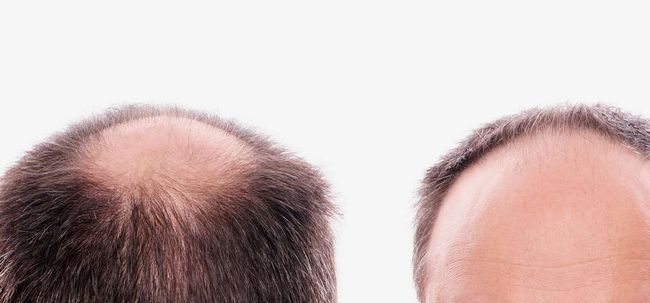 Como lidar com a perda de cabelo em manchas? Photo