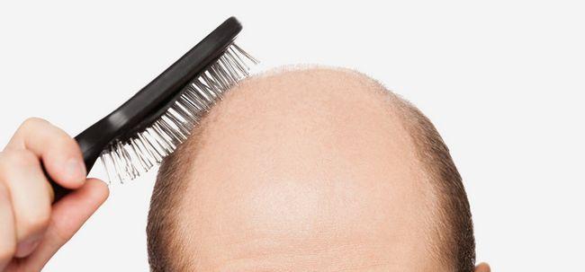 Como tratar a calvície Para Hairloss parcial? Photo