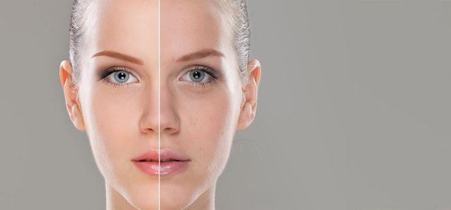Como tratar tom de pele irregular? Photo