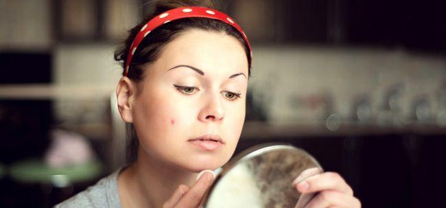 É óleo de gergelim bom para Acne? Photo
