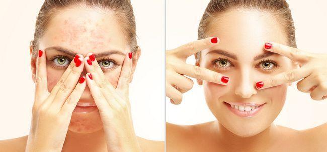 Maquiagem de alergias coisas que você deve estar ciente de Photo