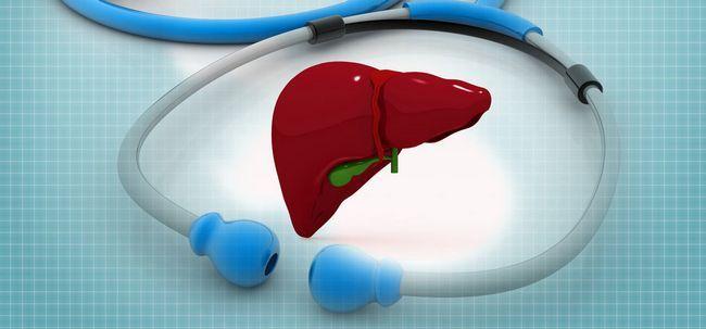 Pedras no fígado - causas, sintomas, tratamento e cirurgia Photo