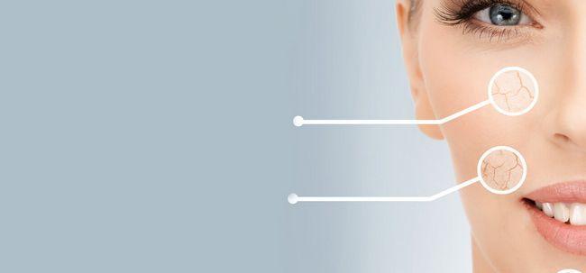 Os 10 sintomas de pele seca Você deve estar ciente de Photo
