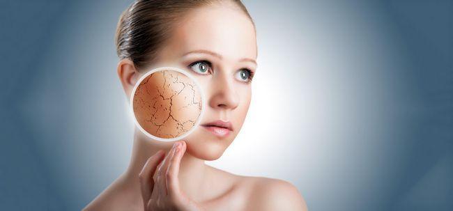 Top 14 Home remédios para a pele seca Photo