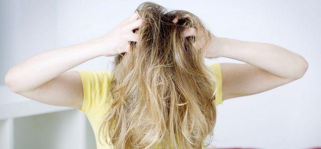 Top 5 sintomas da caspa Photo