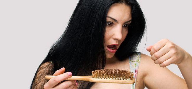 O que provoca queda de cabelo em mulheres? Photo