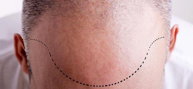 O que é Alongamento cabelo e quais são suas vantagens? Photo